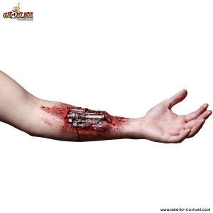 Protesi - ARM